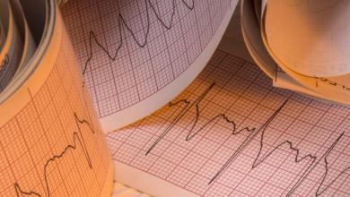 Photo of Aritmie cardiache: tipologie, significato e trattamento