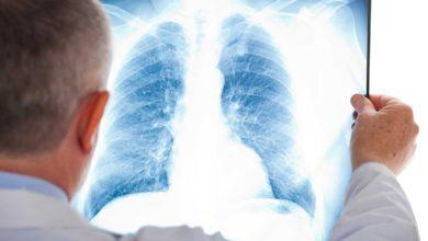 Photo of Trombosi venosa profonda ed embolia polmonare. Le indicazioni più importanti