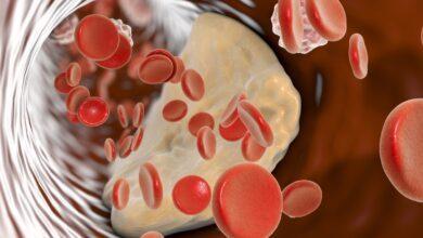 Photo of Ateromasia: definizione, sintomi e trattamento