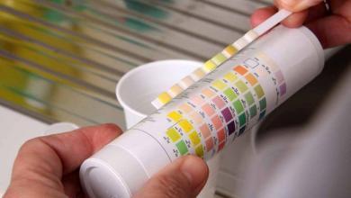 Photo of Citologia urinaria: a cosa serve e come funziona